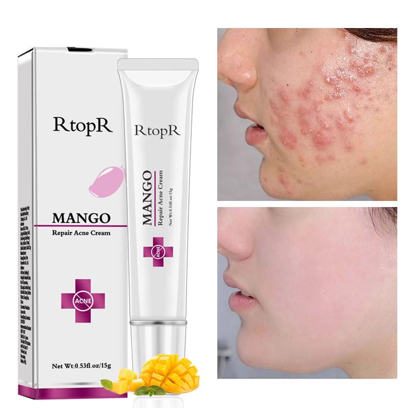 RtopR Mango Acne Treatment Cream (Maskne Treatment)